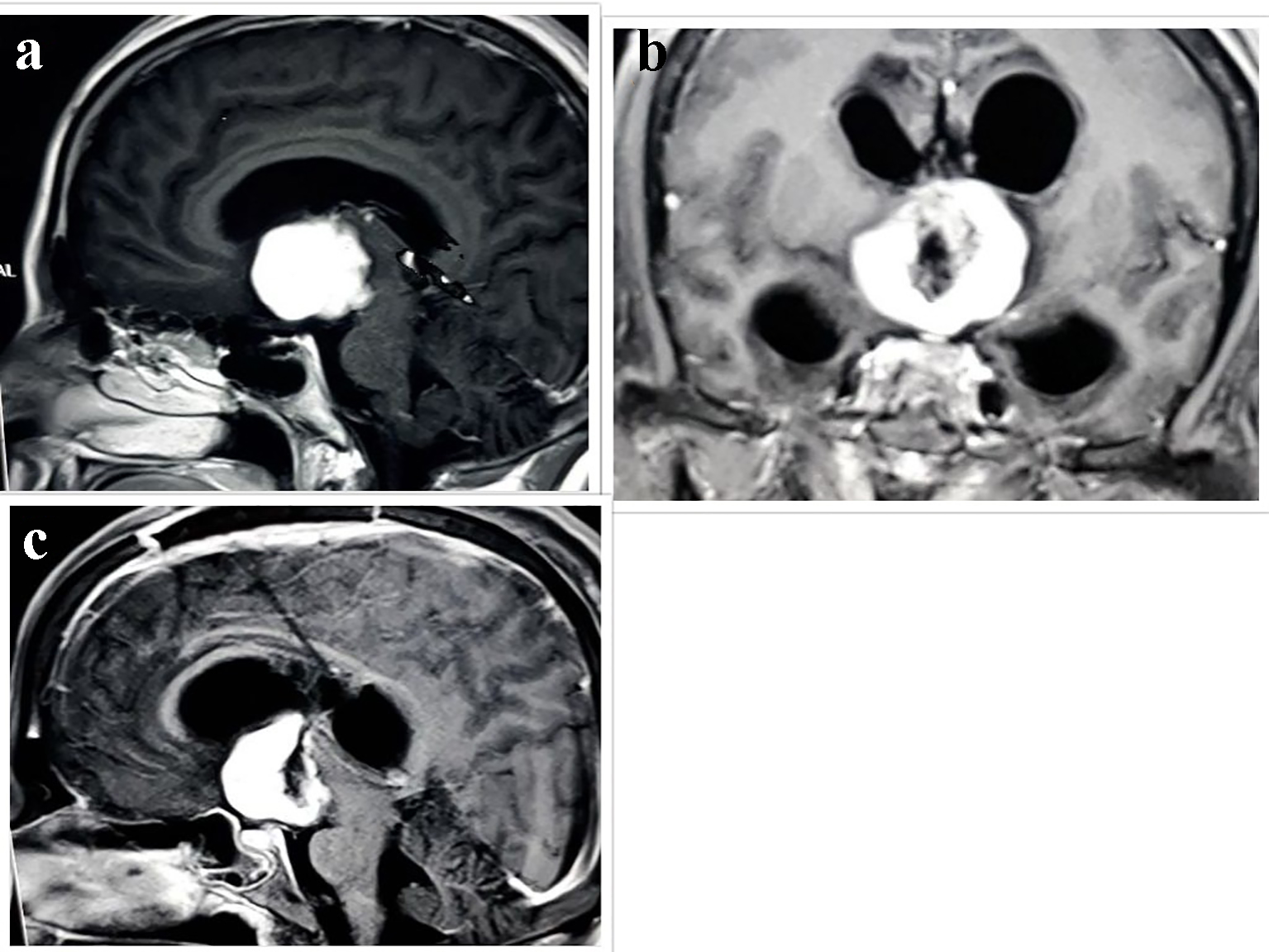 Chordoid Glioma of Third Ventricle Presenting as Primary Polydipsia